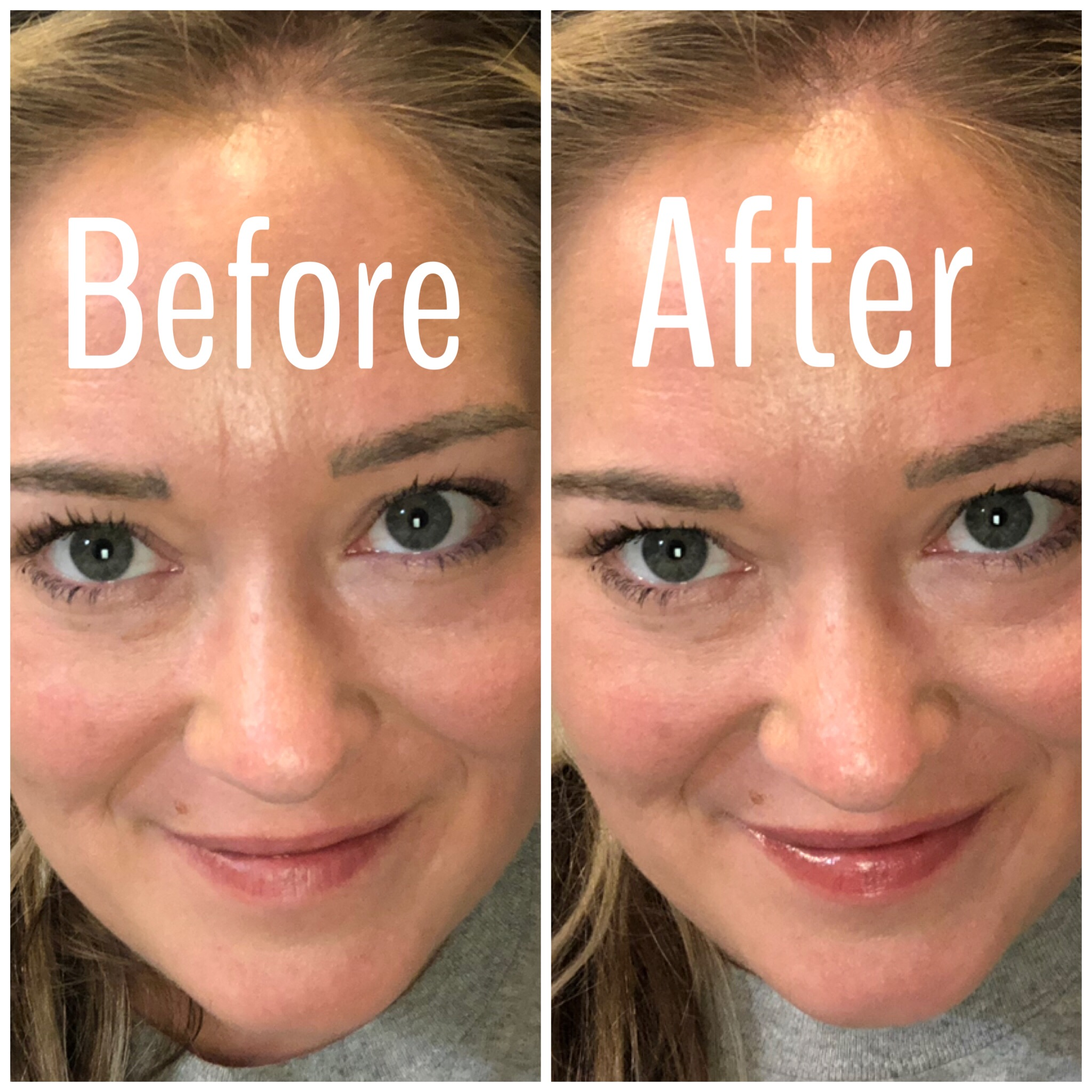 too faced lip injection extreme before and after